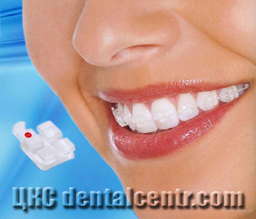 стоматология виниры москва
