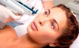 Процедура биоревитализации лица – эффективно и доступно на сайте Bellezza