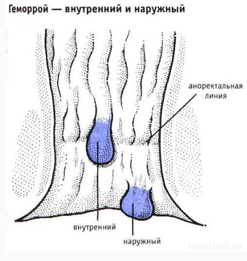 Уролог в Екатеринбурге - Форум о мужском здоровье