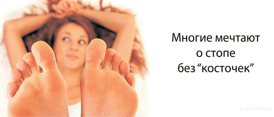 Как лечить косточки на пальцах ног