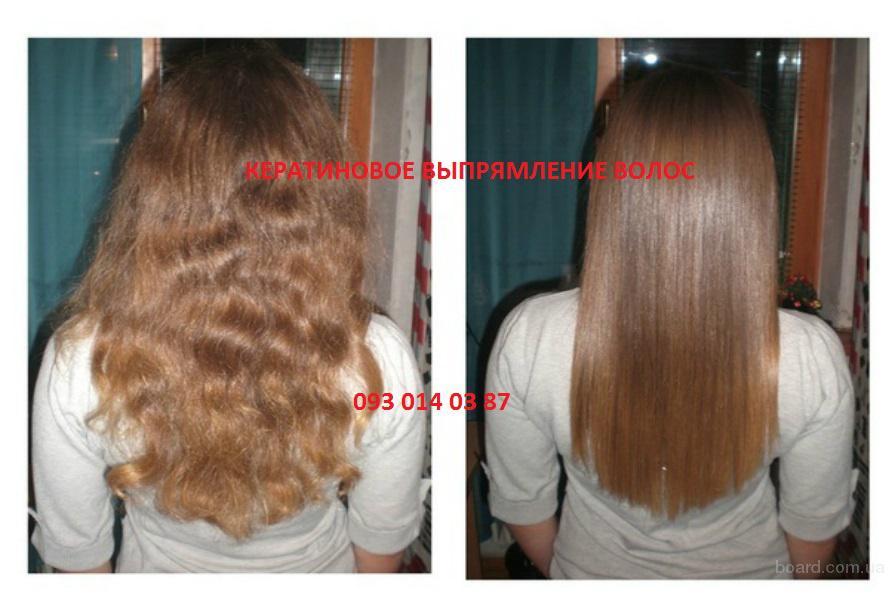 Избыток кортизола и выпадение волос