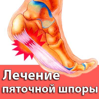 Болят вены ног лечение народными средствами