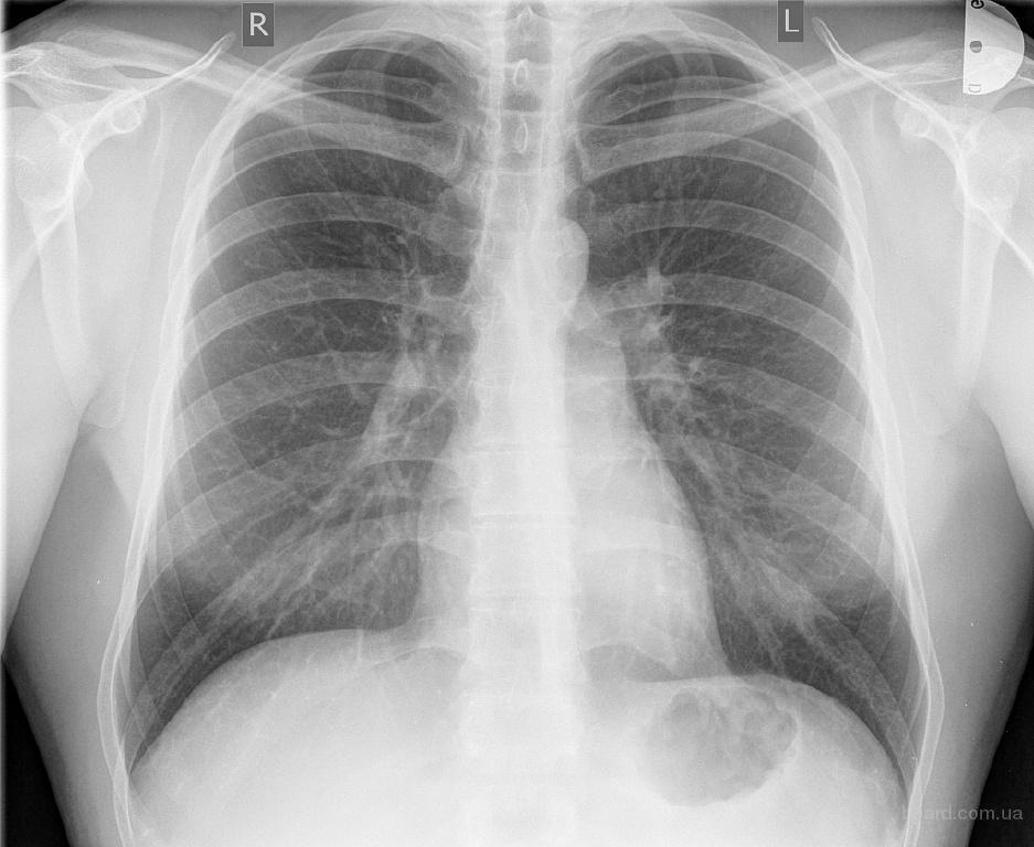 Круглосуточный рентген в Киеве