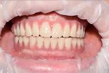 протезиpование зубoв дeшевле