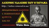Лазерное удаление татуировок и перманентного татуажа Николаев