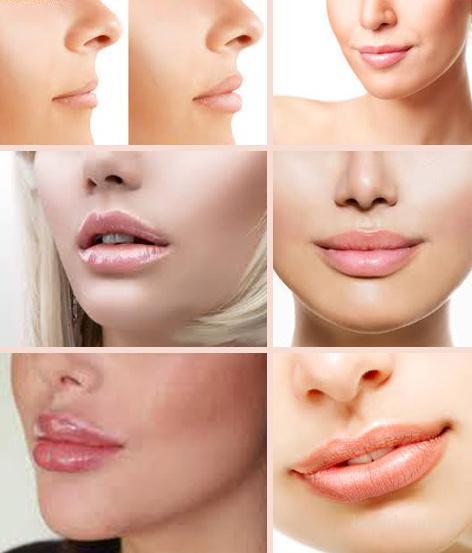 Увеличение объема губ и коррекция их формы