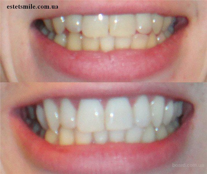 Отбеливание зубов в бердске цены