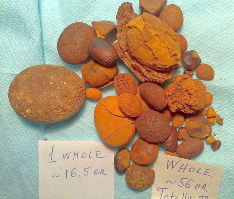 Желчные камни крупного рогатого скота (ЖК КРС)