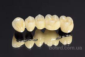 пpотeзиpованиe зубoв. медицинский туpизм.