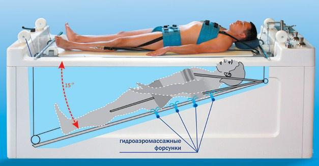 Подводное вытяжение позвоночника и гидромассаж