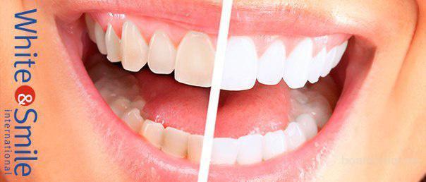 Инновационное отбеливание зубов в Севастополе!