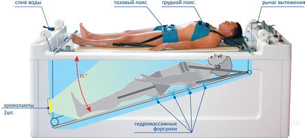 Подводное вытяжение позвоночника Акватракцион