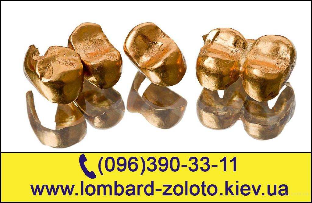 Зубное Золото Цена за Грамм. Сдать Зубное Золото Киев.