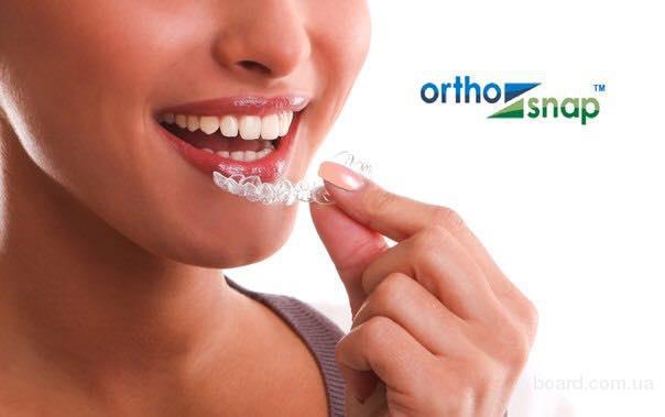 Элайнеры, капа для выравнивания зубов, выравнивание зубов без брекетов