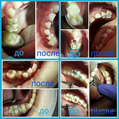 Детская стоматология Multident в Киеве