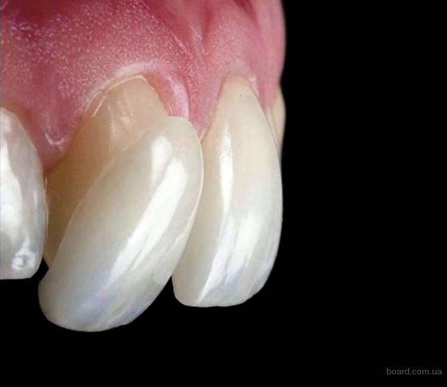 Хочешь белые зубы?