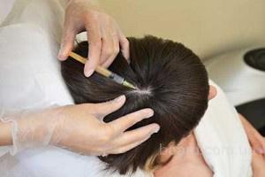Лечение выпадения волос в Киеве Печерск.