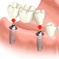Что выбрать протезирование зубов или имплантацию?